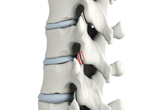 Lumbar Foraminotomy, Facetectomy