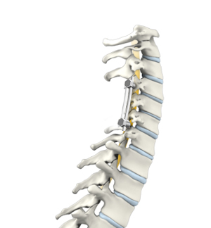 Posterior Cervical Laminectomy And Fusion Surgery New York